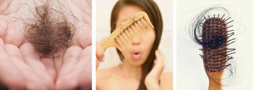 hairloss shampoo.jpg