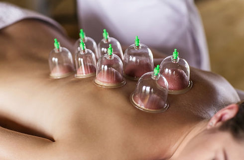 cupping.jpeg
