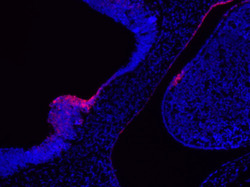 mouse embryo11 SHH