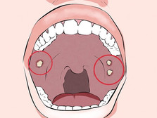 มะเร็งช่องปาก