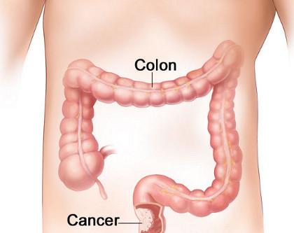 มะเร็งลำไส้และทวารหนัก