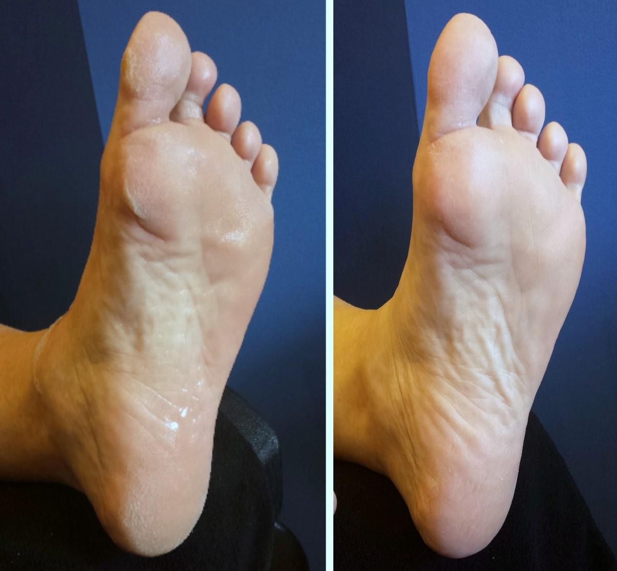 mens pedicure beforea-afterPedicure