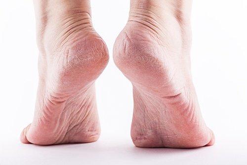 men calluses