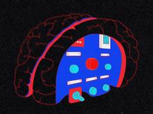 Ain't Nothin' But a Brain Sprain: