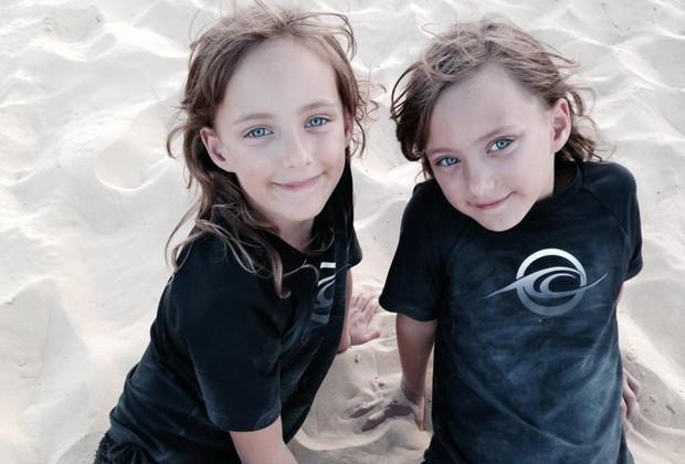 Gêmeas nascem com cordões umbilicais entrelaçados