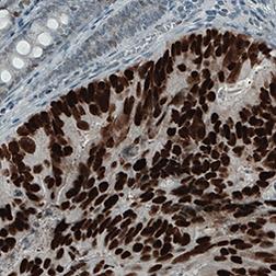 p53-antibody-amab90956-cancer.png