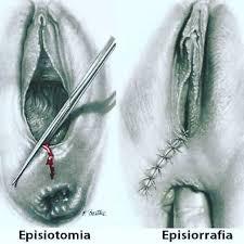 CICATRICES DE EPISIOTOMÍA