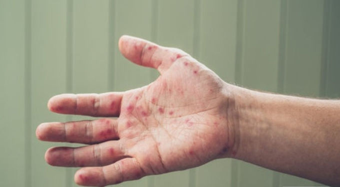 У Новоселиці медсестра лікарні захворіла на кір