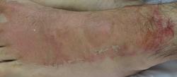Dermatitis de contacto aguda