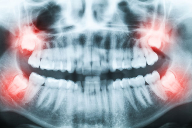 Closeup%20of%20x-ray%20image%20of%20teeth%20and%20mouth%20with%20all%20four%20molars%20vertically%20