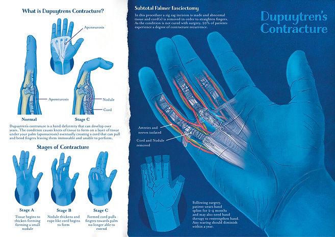 C4 Hand surgery_Catherine Labarca .jpg