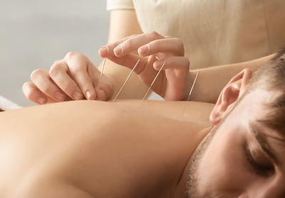 Young man getting acupuncture treatment,