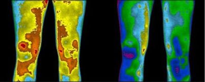 thermography inflammation from legs with