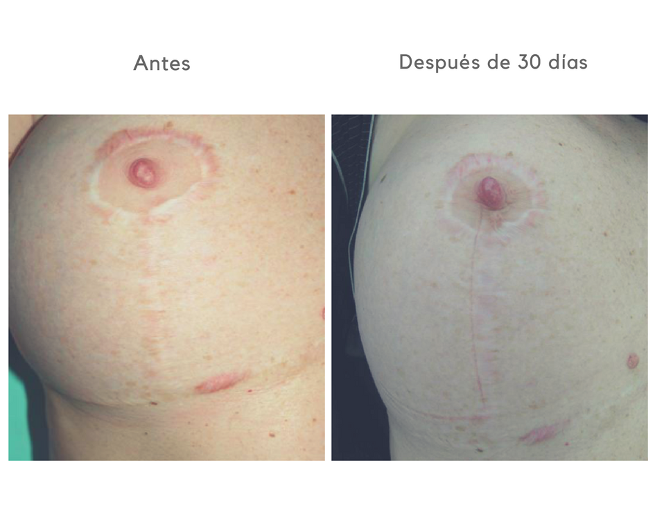 Cicatrices pechos