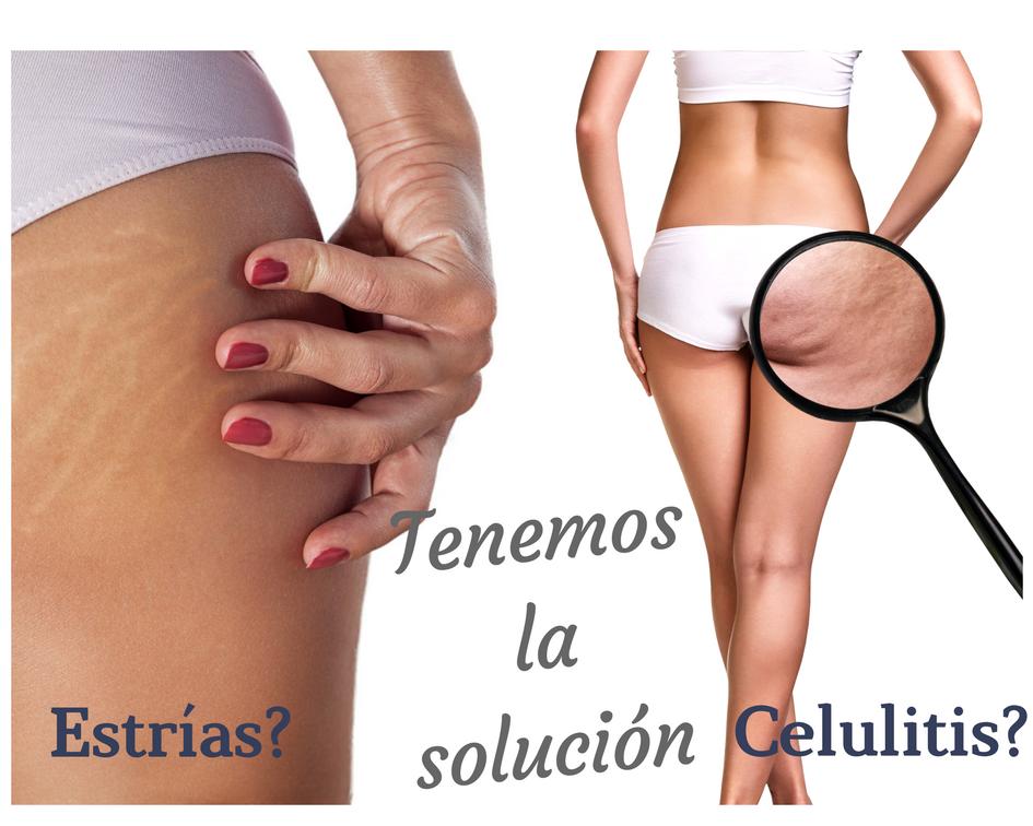 celulitis_estrías
