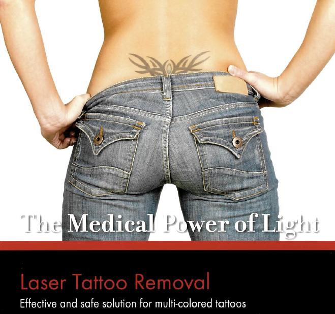 removal tatoo