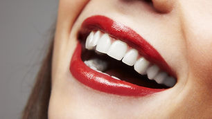 femme-sourire-dents-blanches.jpg