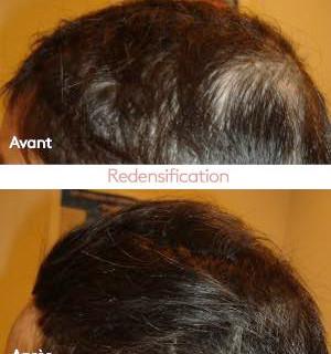 FR-Helight-AA-cheveux-femme_thumb.jpg