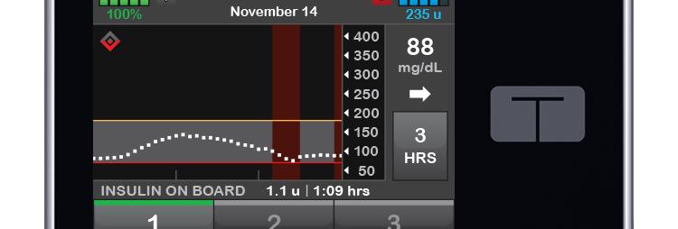 Tandem T:Flex Insulin Delivery Pump 1 Ea Kit