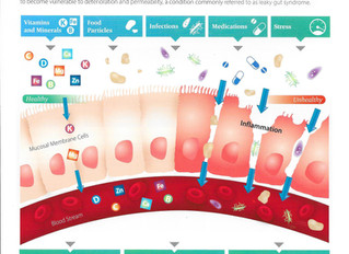 Leaky Gut Syndrome At A Glance