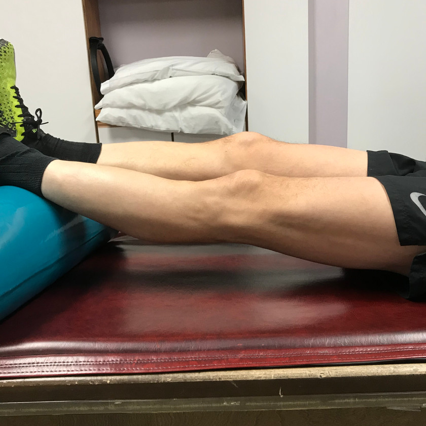 Hyperextended knee, goes beyond straight, notice the difference from the right knee to the left