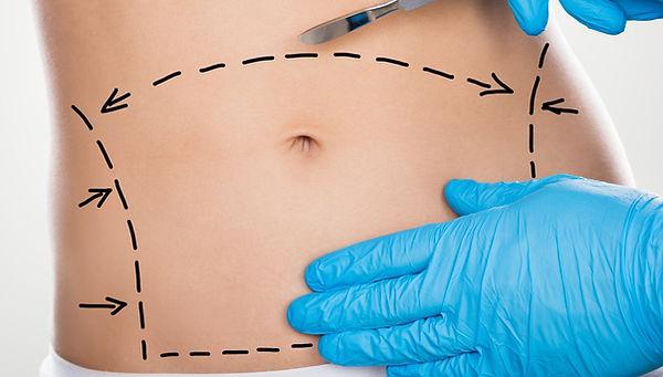 Abdominoplasty-Surgery.jpg
