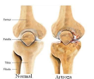 care sună articulația cu artroza