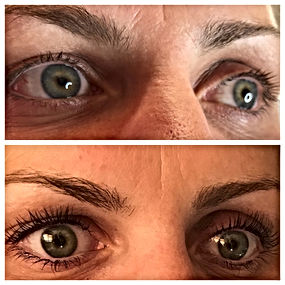 Eyelash lift using Elleebana