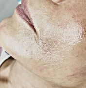 After dermaplaning treatment