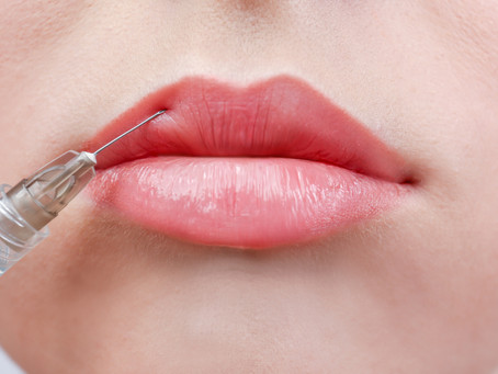 Treating Lips Using a Cannula