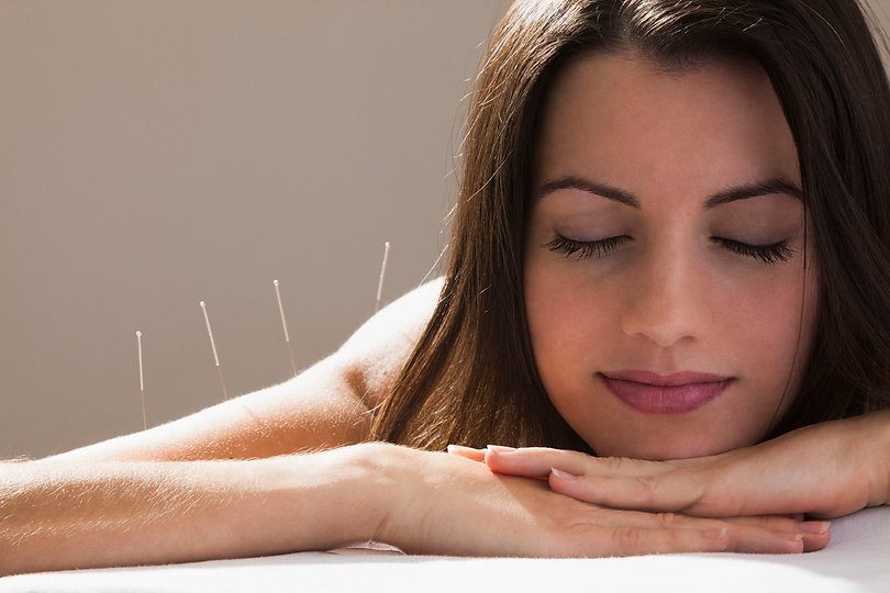 acupuncturesmile-56e2923d5f9b5854a9f8afb