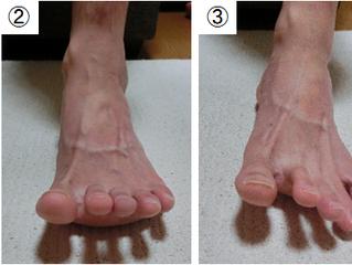 足の指が開かない原因とトレーニング