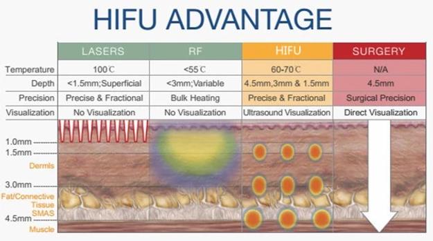 Hifu Advantage