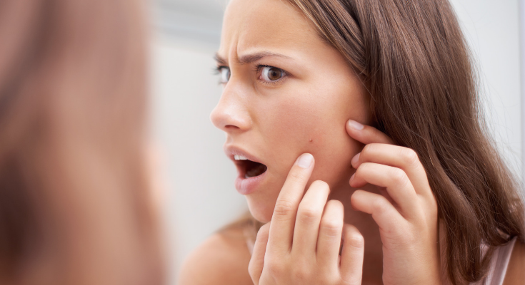 The Link Between Diet and Acne Breakouts