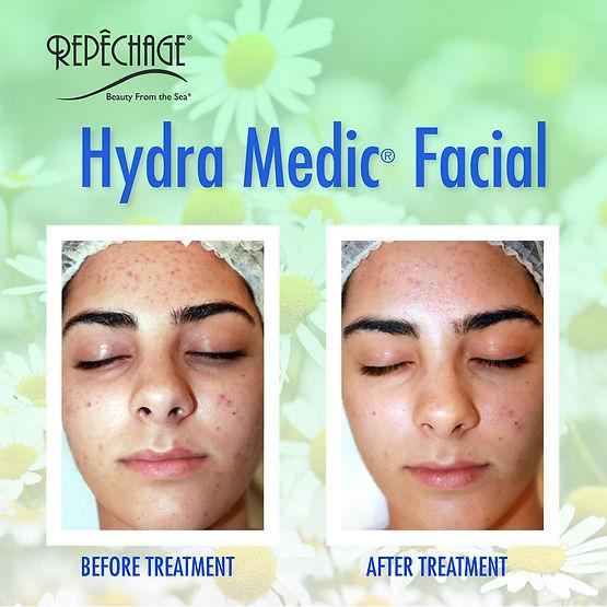 Hydra Medic Facial.jpg