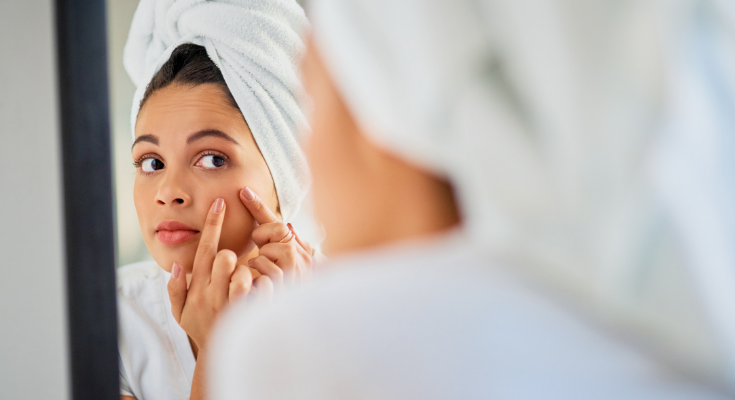 How You Might Be Making Your Acne Breakouts Worse