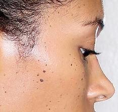 Dermatosis Papulosis Nigra1_edited.jpg