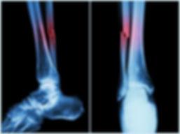 Broken bone xray.jpg