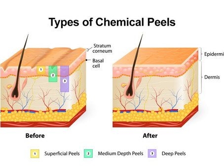 The Benefits of a Chemical Peel
