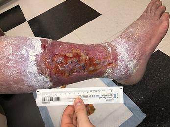 Venous Stasis Ulcer Right Shin