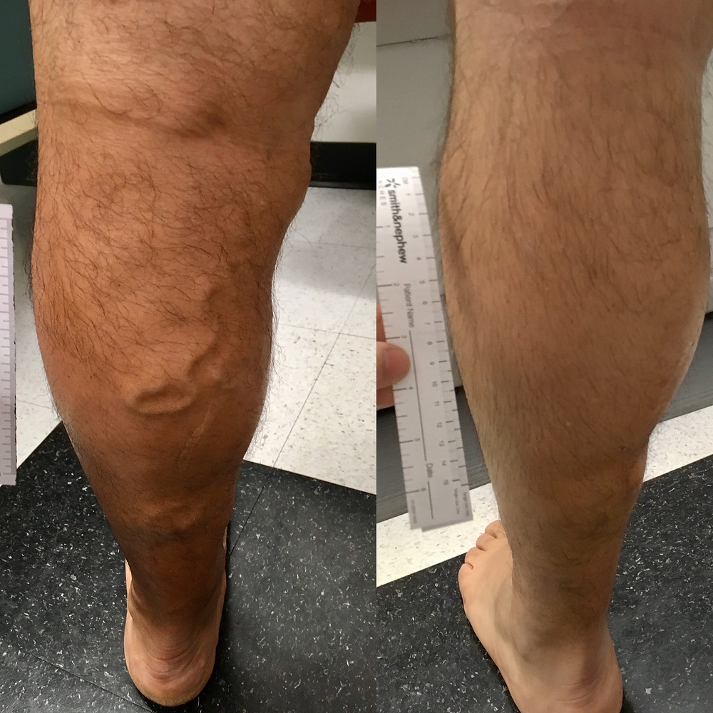 Before and after varicose vein procedure