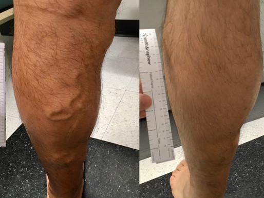 8 Myths About Varicose Veins