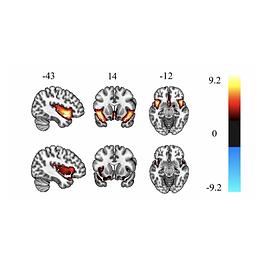 Longitudinal course of cannabis-induced psychosis (CIP)
