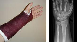 wrist-cast