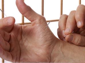 Acupuntura para combatir el Parkinson