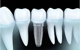 veniri-protezi-implanti.jpg