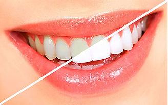veniri-otbelivanie-zubov.jpg