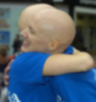 Alopecia UK charity volunteers
