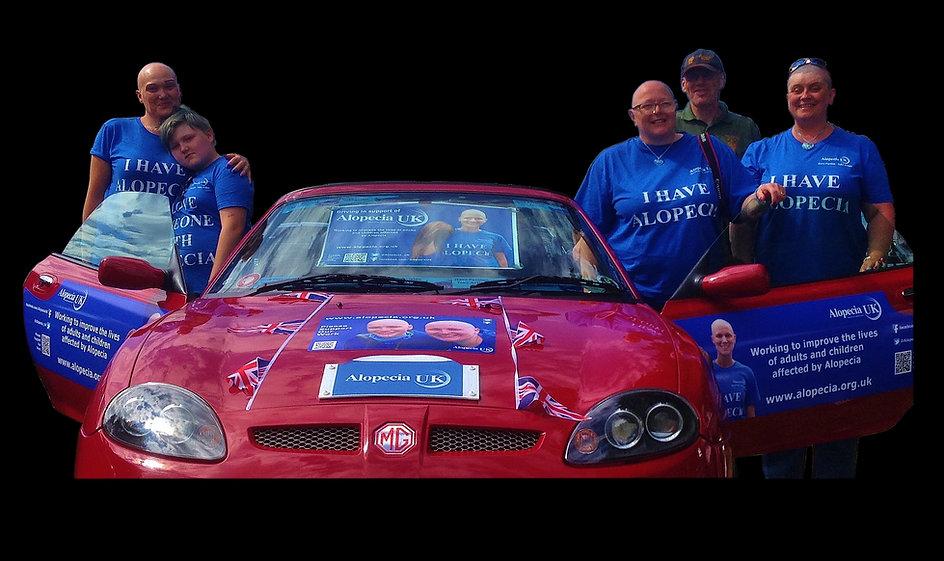Alopecia UK charity