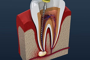 Illustration-of-a-root-canal-1024x683.jp